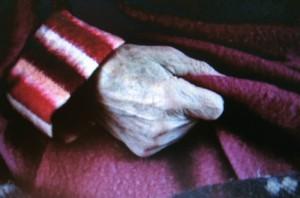 elderly hypotermia 2